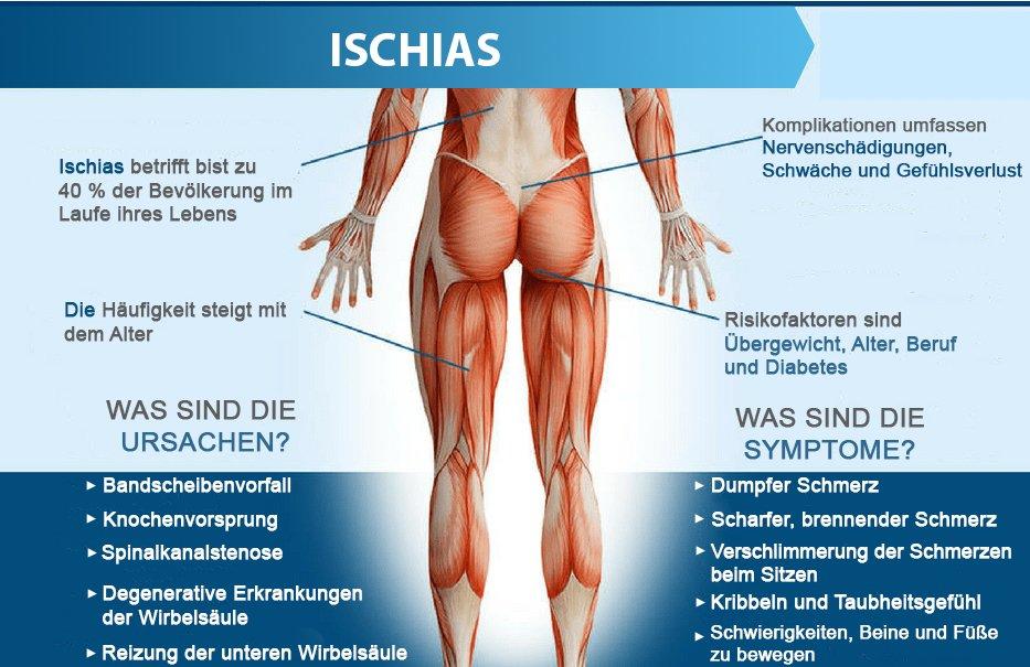 ISCHIAS DEUTSCHLAND acuraflex